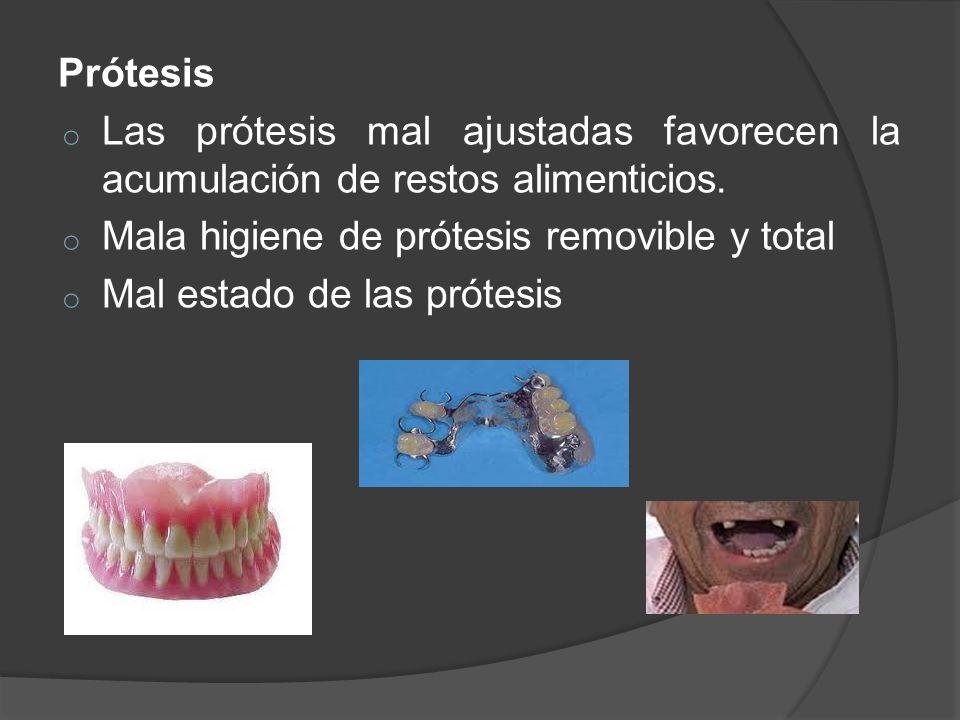 Prótesis Las prótesis mal ajustadas favorecen la acumulación de restos alimenticios. Mala higiene de prótesis removible y total.