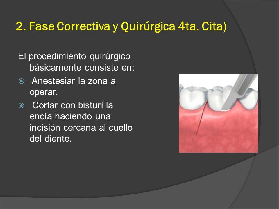 2. Fase Correctiva y Quirúrgica 4ta. Cita)