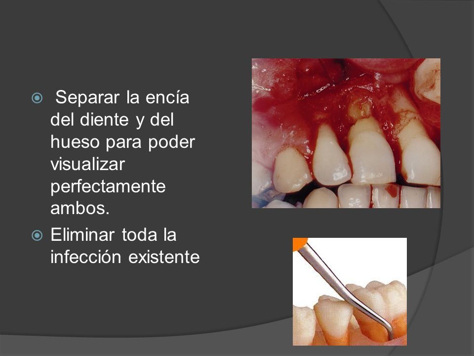 Separar la encía del diente y del hueso para poder visualizar perfectamente ambos.