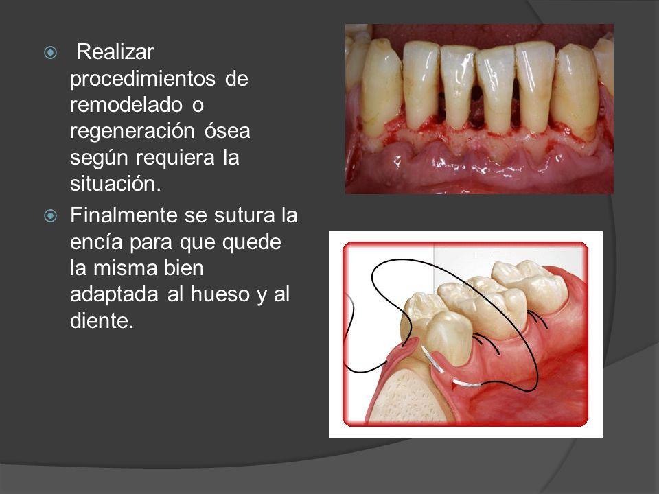 Realizar procedimientos de remodelado o regeneración ósea según requiera la situación.