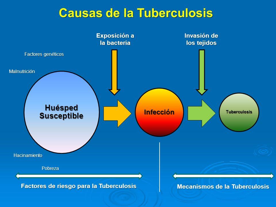 Causas de la Tuberculosis