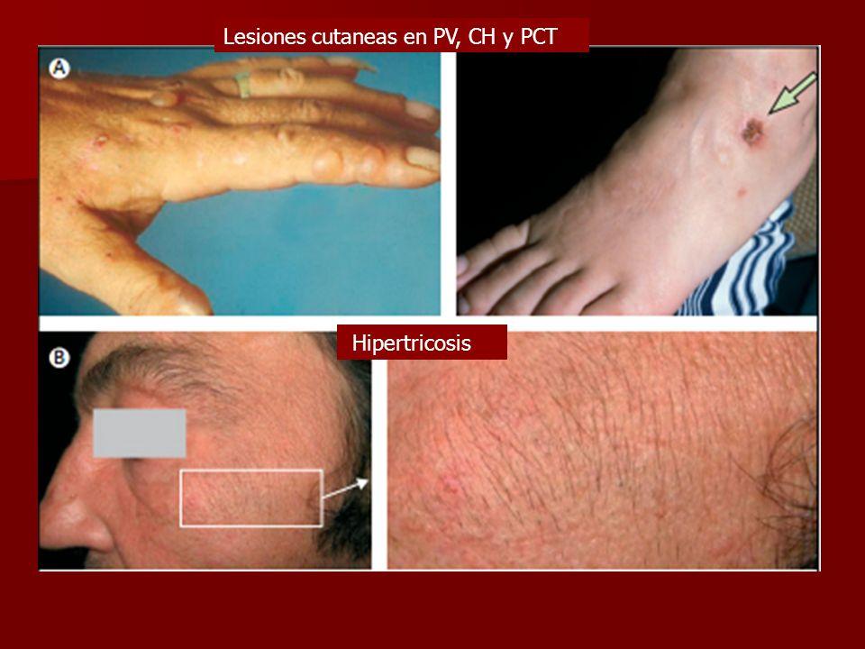 Lesiones cutaneas en PV, CH y PCT