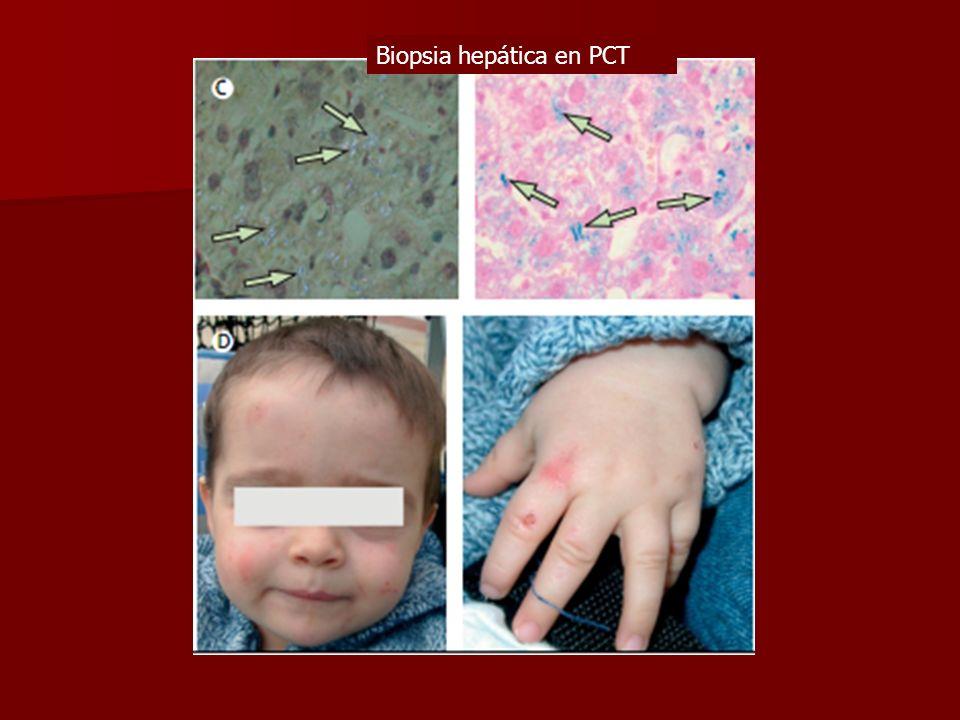 Biopsia hepática en PCT