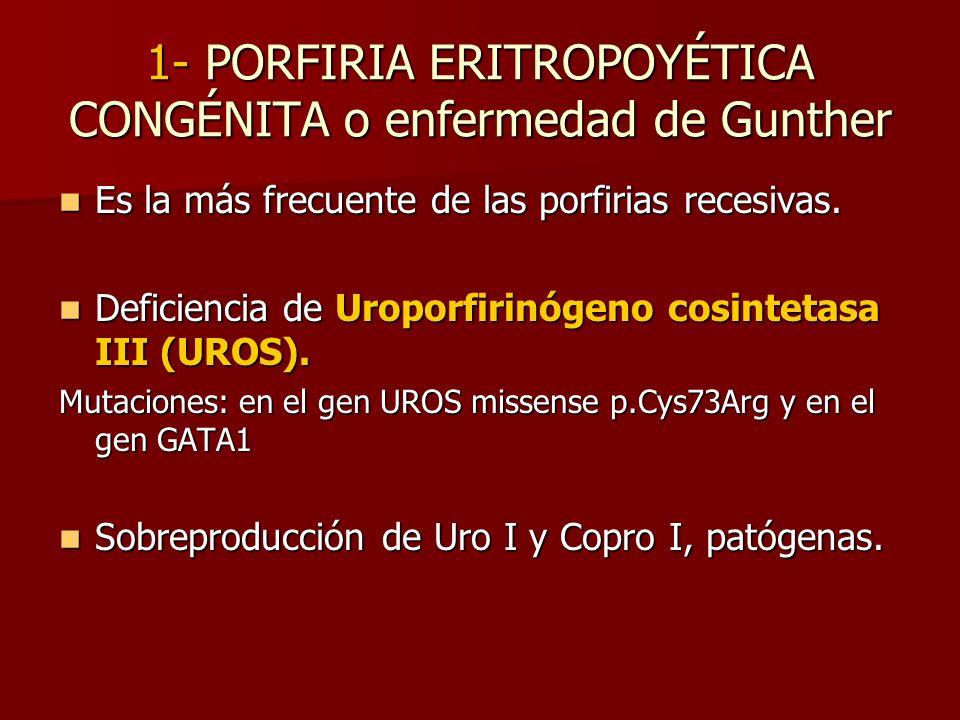 1- PORFIRIA ERITROPOYÉTICA CONGÉNITA o enfermedad de Gunther