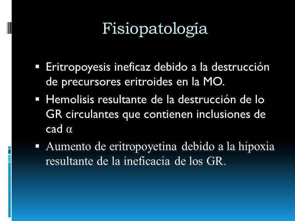 FisiopatologíaEritropoyesis ineficaz debido a la destrucción de precursores eritroides en la MO.