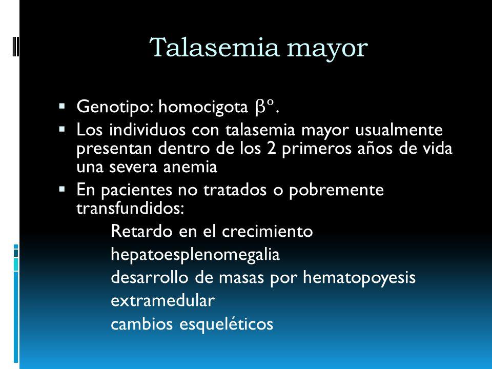 Talasemia mayor Genotipo: homocigota βº.