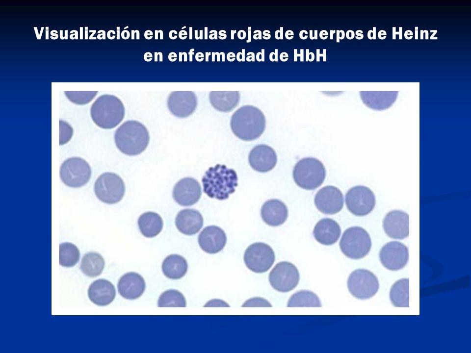 Visualización en células rojas de cuerpos de Heinz en enfermedad de HbH