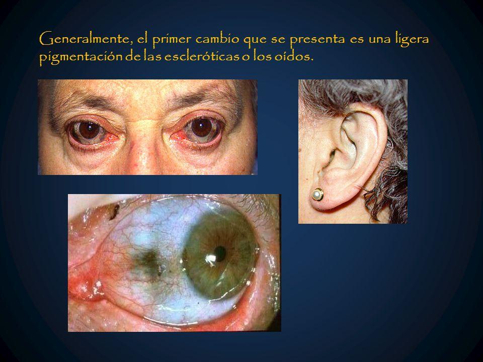 Generalmente, el primer cambio que se presenta es una ligera pigmentación de las escleróticas o los oídos.