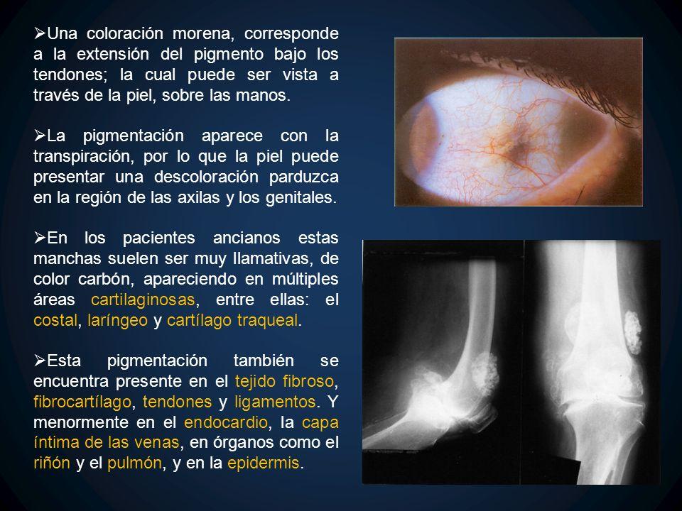Una coloración morena, corresponde a la extensión del pigmento bajo los tendones; la cual puede ser vista a través de la piel, sobre las manos.