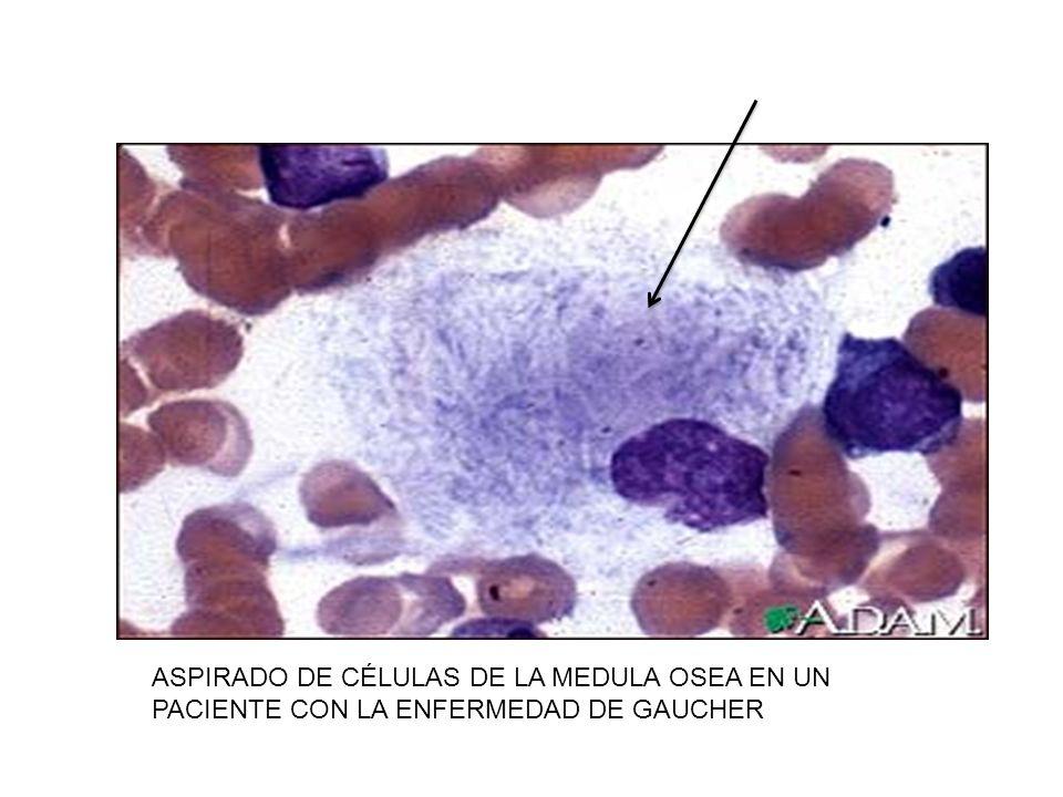 ASPIRADO DE CÉLULAS DE LA MEDULA OSEA EN UN PACIENTE CON LA ENFERMEDAD DE GAUCHER
