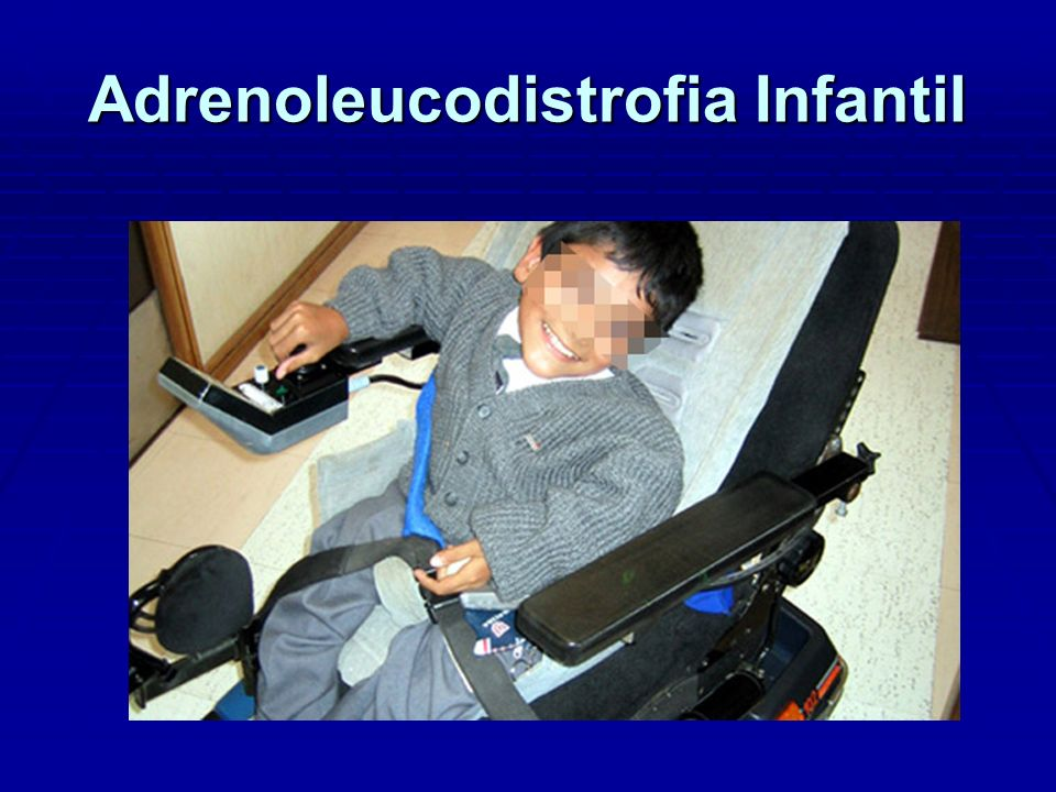 Adrenoleucodistrofia Infantil