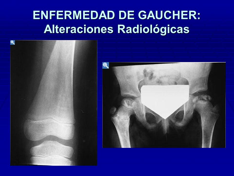 ENFERMEDAD DE GAUCHER: Alteraciones Radiológicas