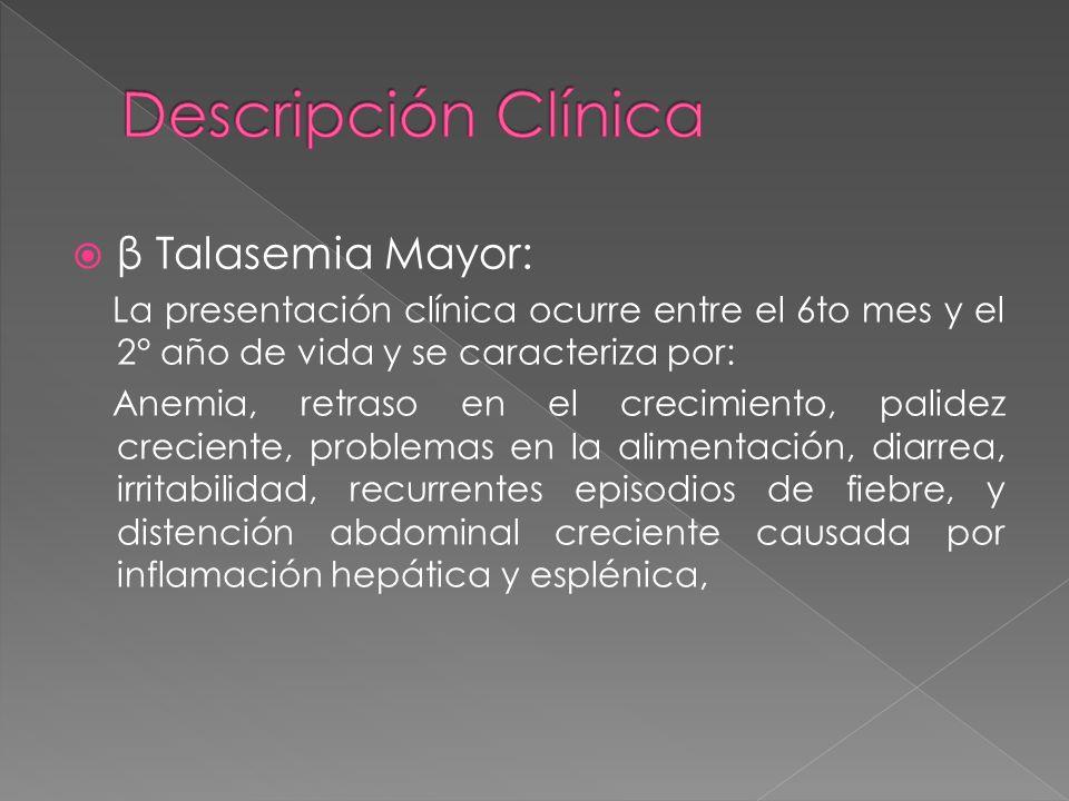Descripción Clínica β Talasemia Mayor: