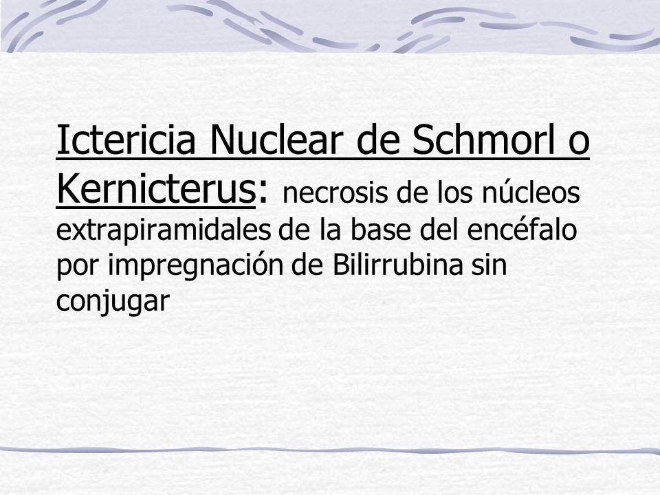 Ictericia Nuclear de Schmorl o Kernicterus: necrosis de los núcleos extrapiramidales de la base del encéfalo por impregnación de Bilirrubina sin conjugar