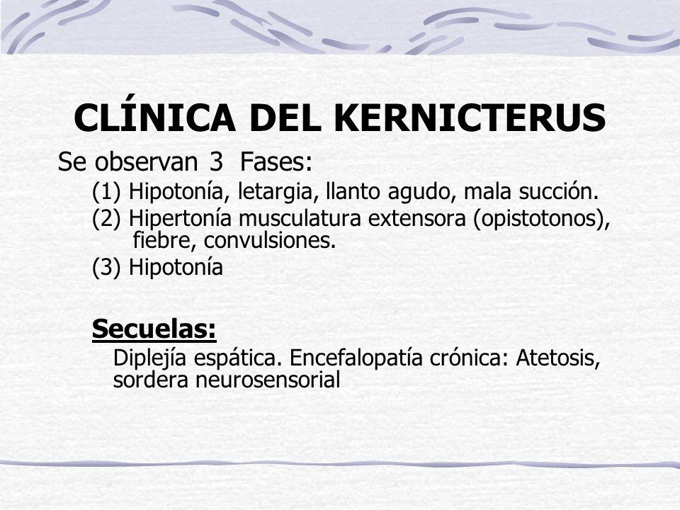 CLÍNICA DEL KERNICTERUS