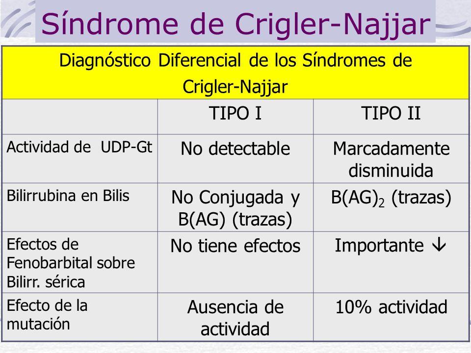 Síndrome de Crigler-Najjar