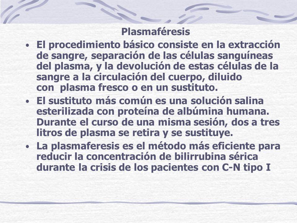 Plasmaféresis