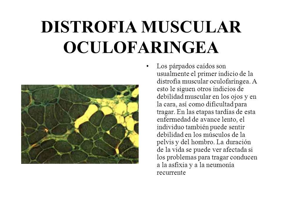 DISTROFIA MUSCULAR OCULOFARINGEA