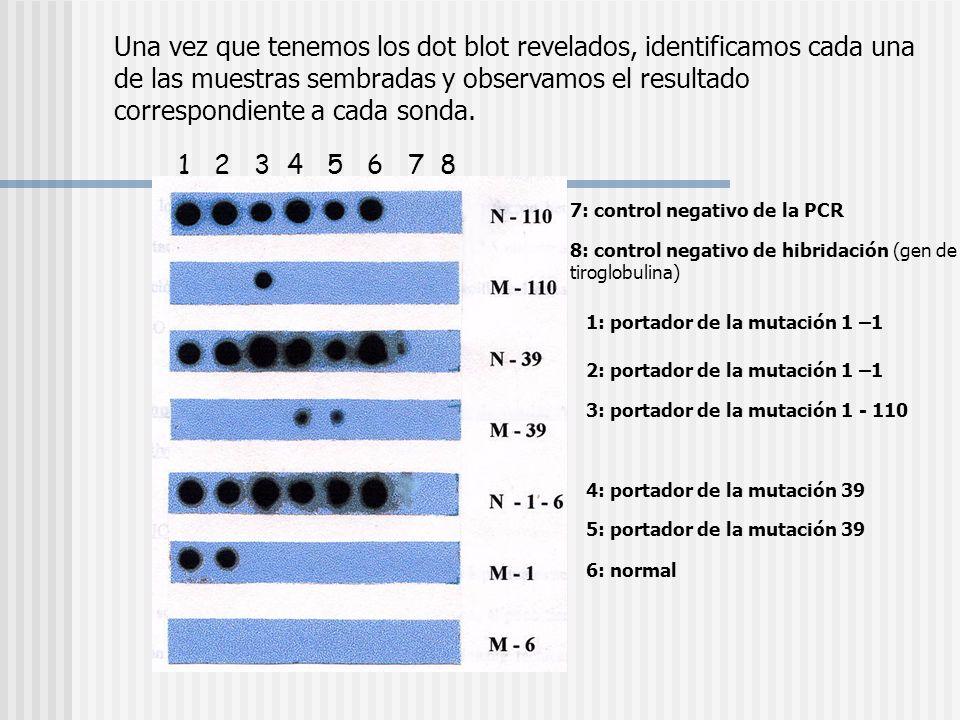 Una vez que tenemos los dot blot revelados, identificamos cada una de las muestras sembradas y observamos el resultado correspondiente a cada sonda.