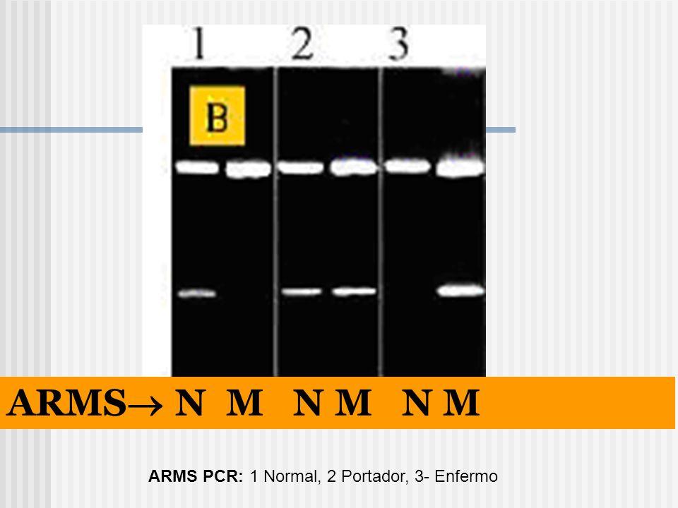 ARMS N M N M N M ARMS PCR: 1 Normal, 2 Portador, 3- Enfermo