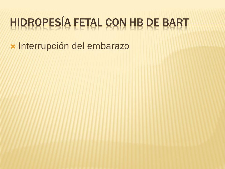 hidropesía fetal con Hb de Bart
