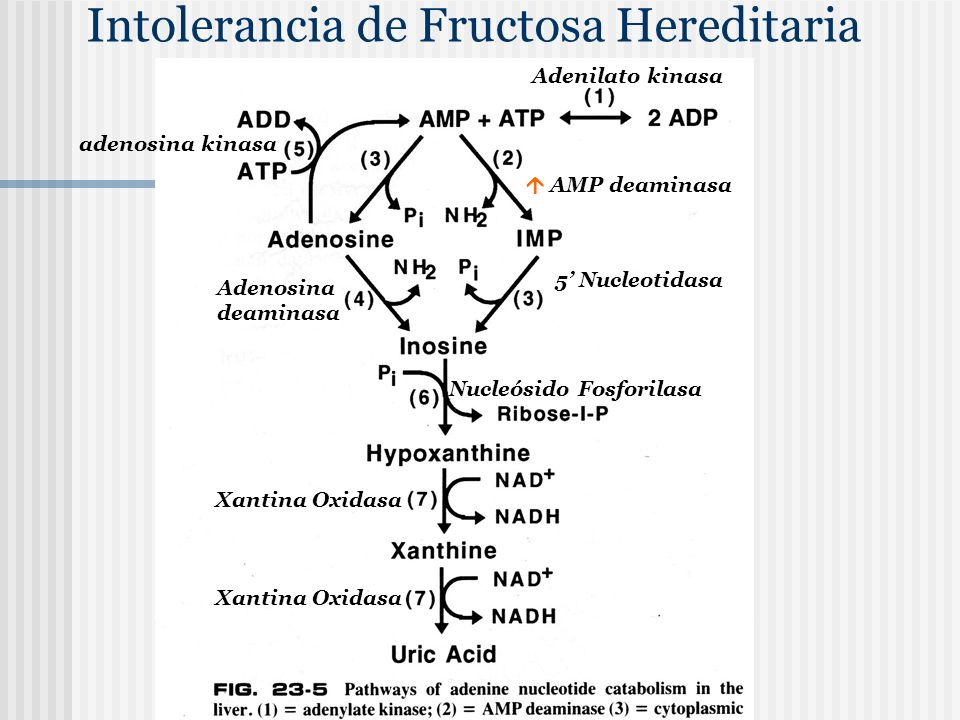 Intolerancia de Fructosa Hereditaria