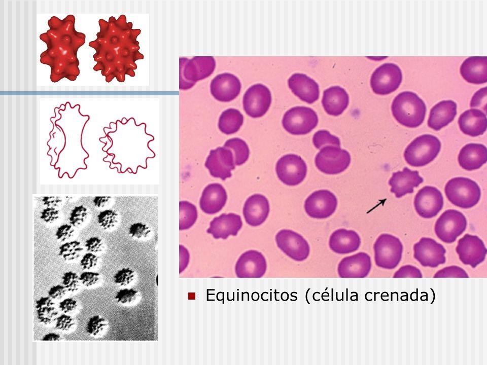 Equinocitos (célula crenada)