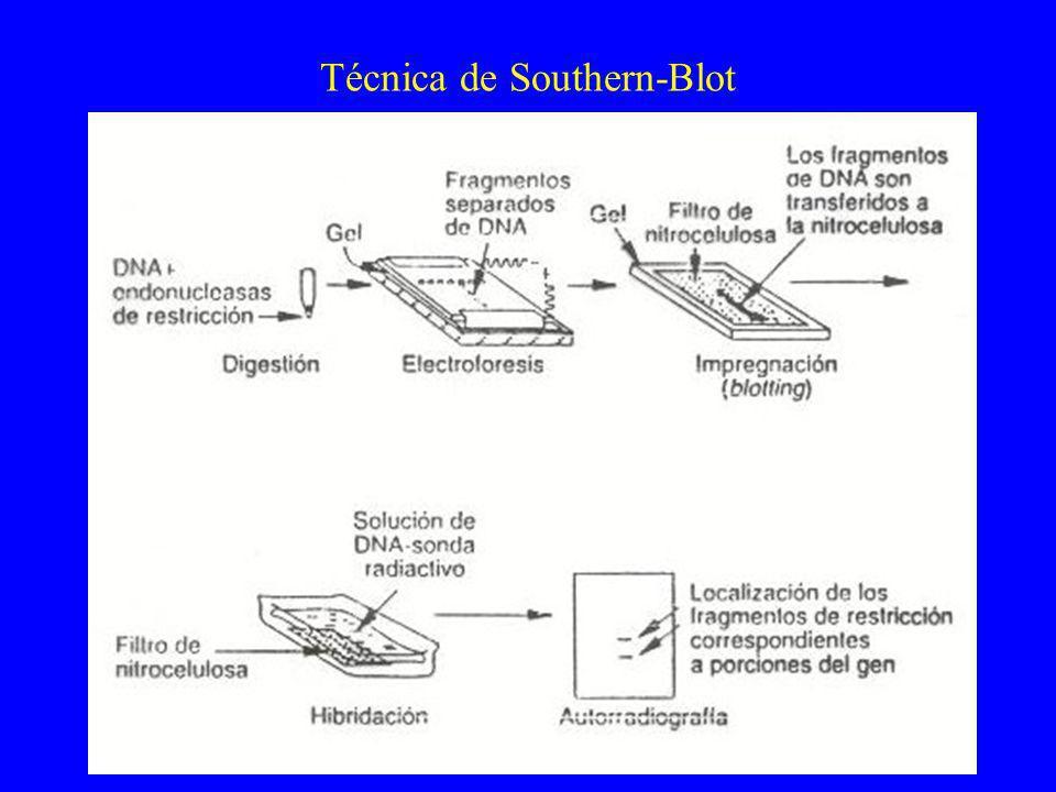 Técnica de Southern-Blot