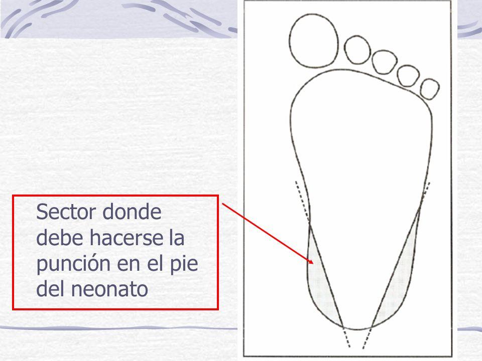 Sector donde debe hacerse la punción en el pie del neonato