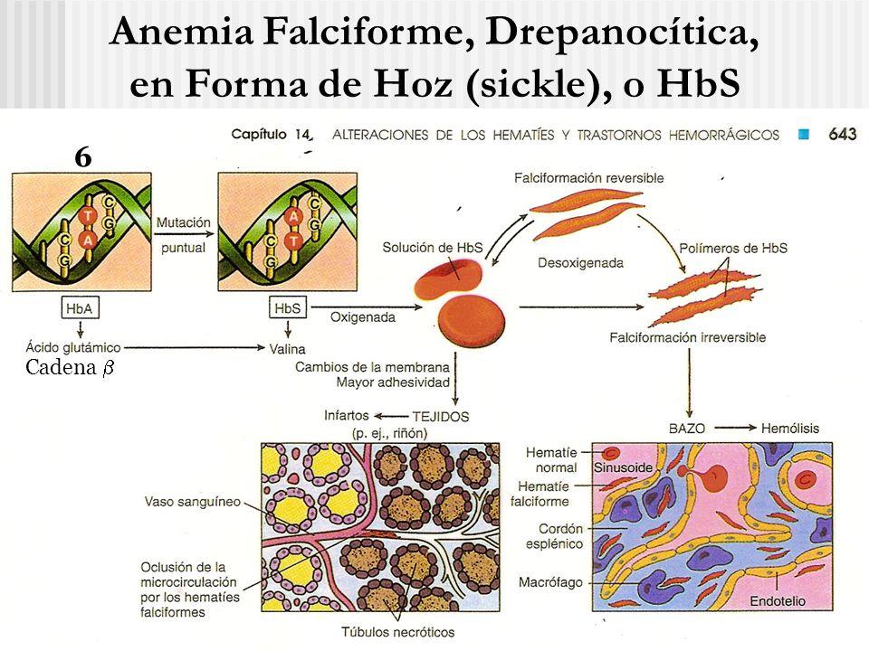 Anemia Falciforme, Drepanocítica, en Forma de Hoz (sickle), o HbS