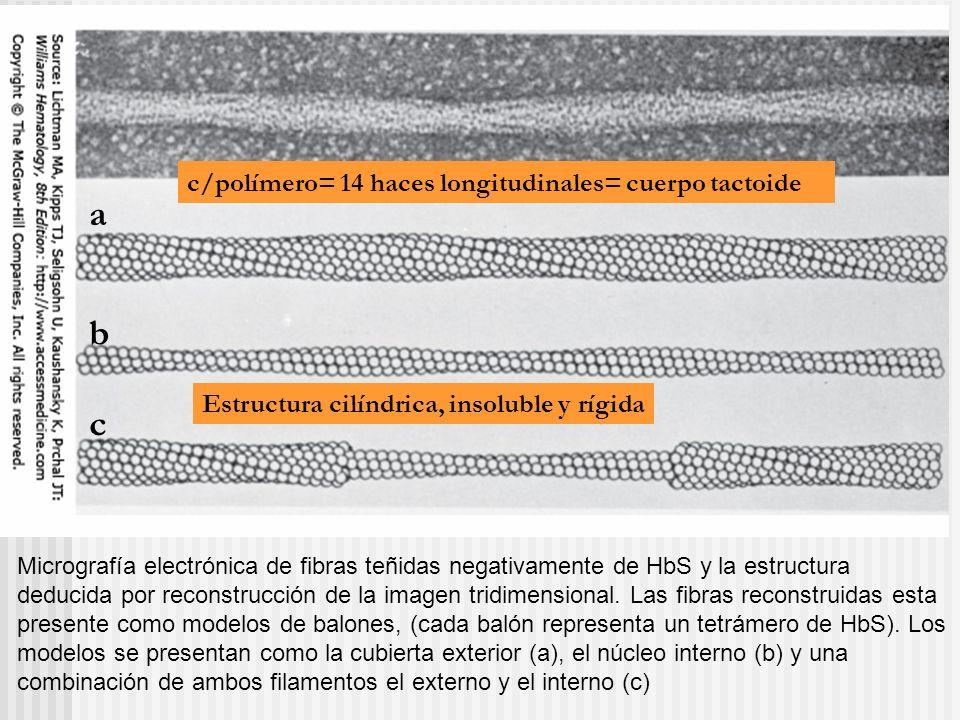 a b c c/polímero= 14 haces longitudinales= cuerpo tactoide