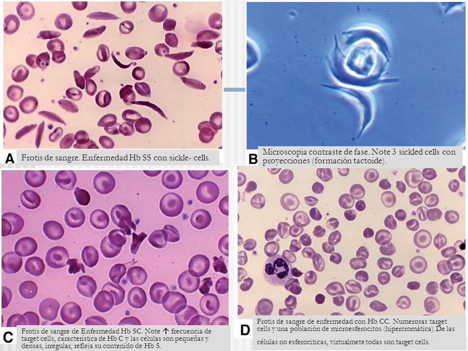 Frotis de sangre. Enfermedad Hb SS con sickle- cells.