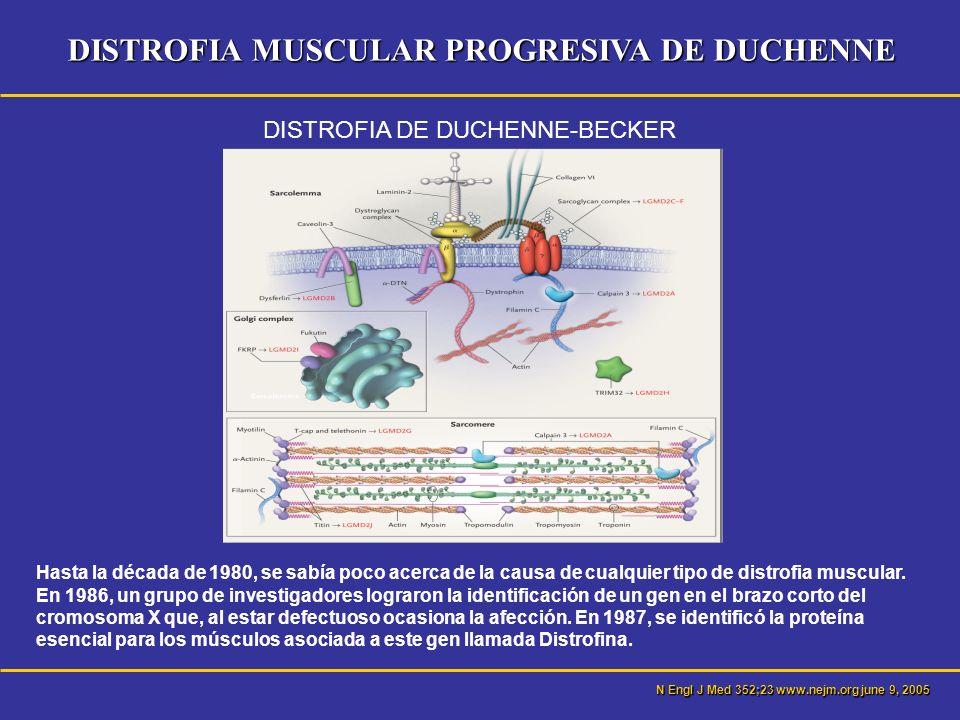 DISTROFIA MUSCULAR PROGRESIVA DE DUCHENNE