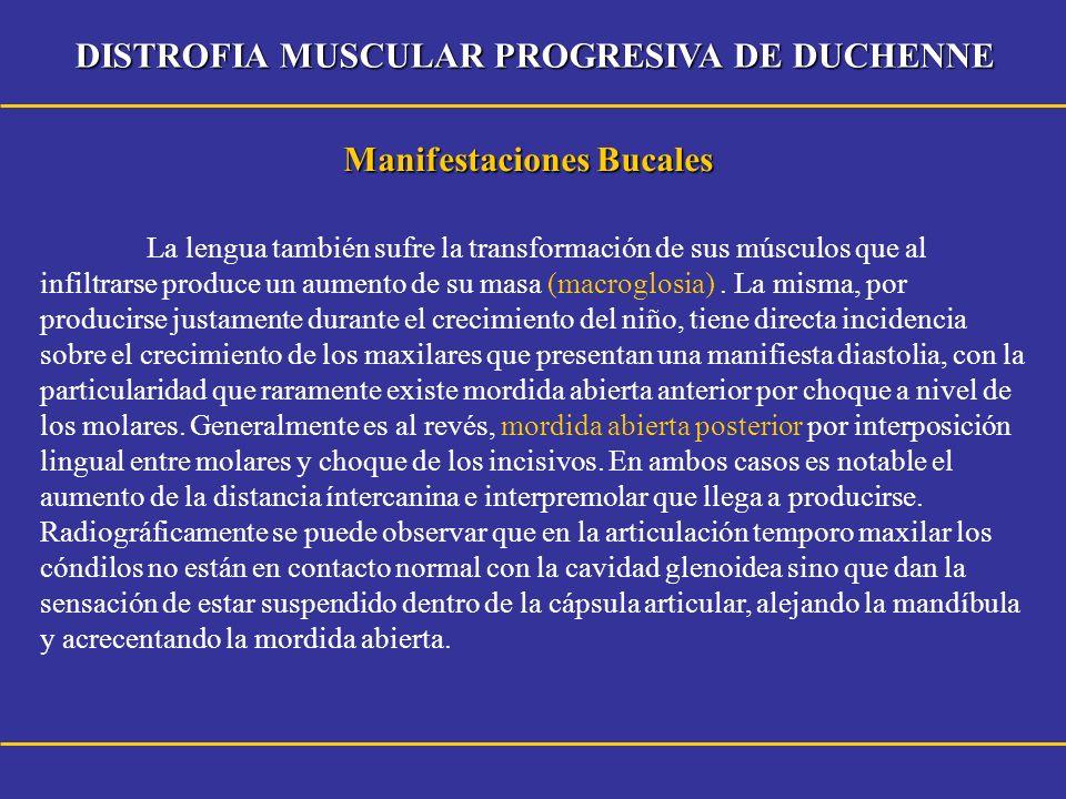 DISTROFIA MUSCULAR PROGRESIVA DE DUCHENNE Manifestaciones Bucales