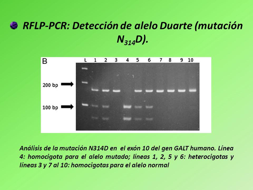 RFLP-PCR: Detección de alelo Duarte (mutación N314D).