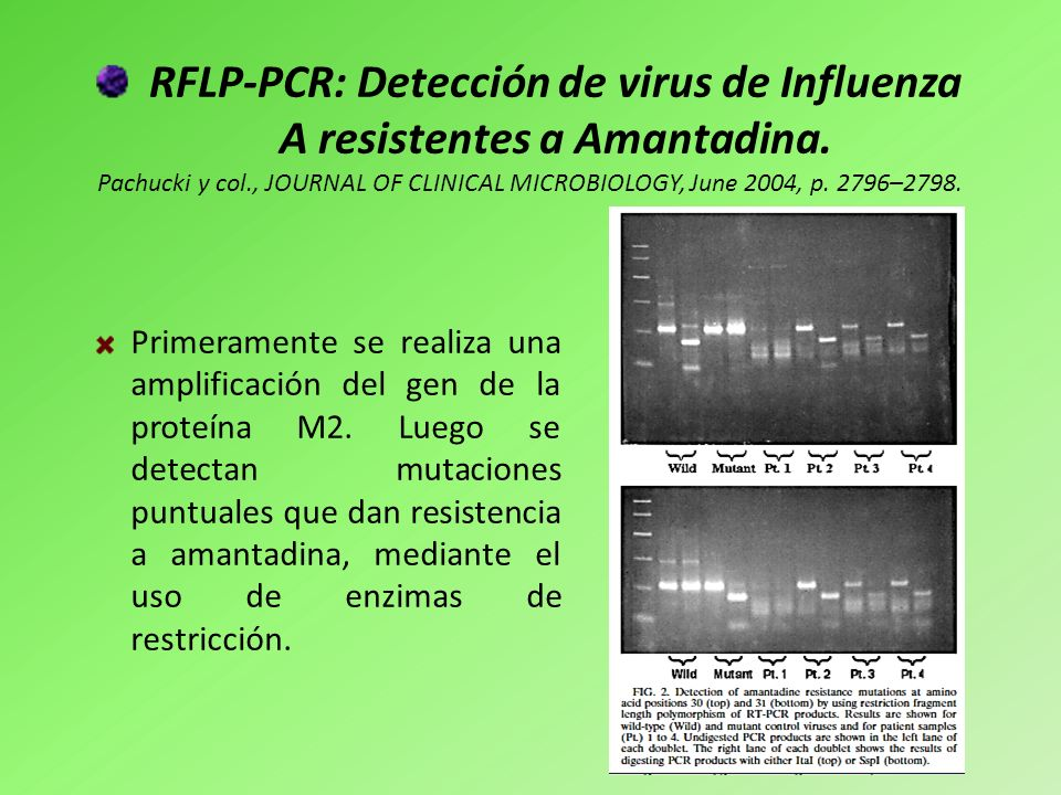 RFLP-PCR: Detección de virus de Influenza A resistentes a Amantadina.