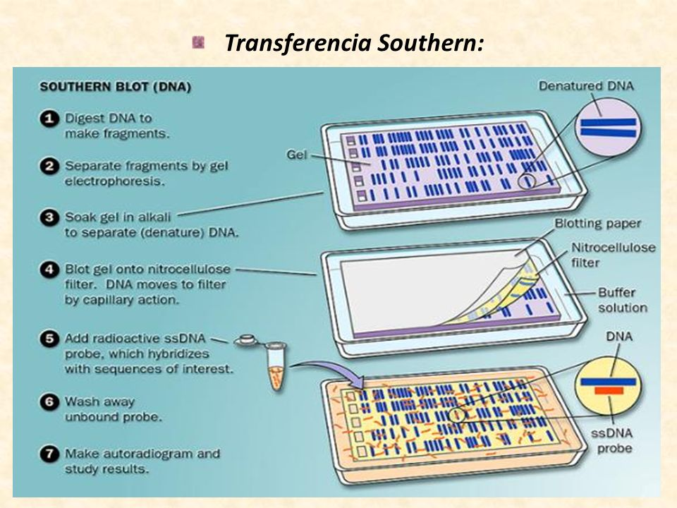 Transferencia Southern: