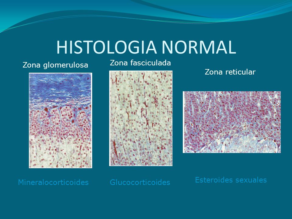 HISTOLOGIA NORMAL Zona fasciculada Zona glomerulosa Zona reticular