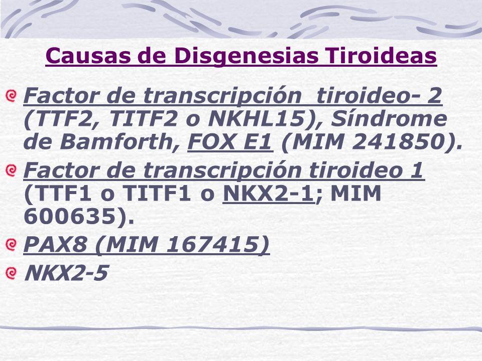 Causas de Disgenesias Tiroideas