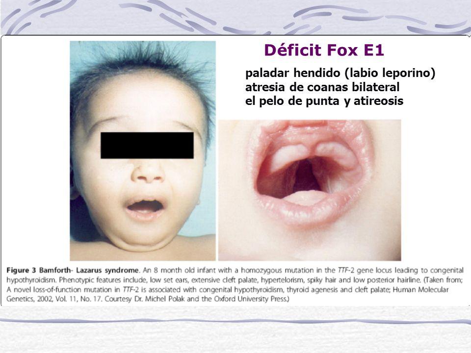Déficit Fox E1 paladar hendido (labio leporino)