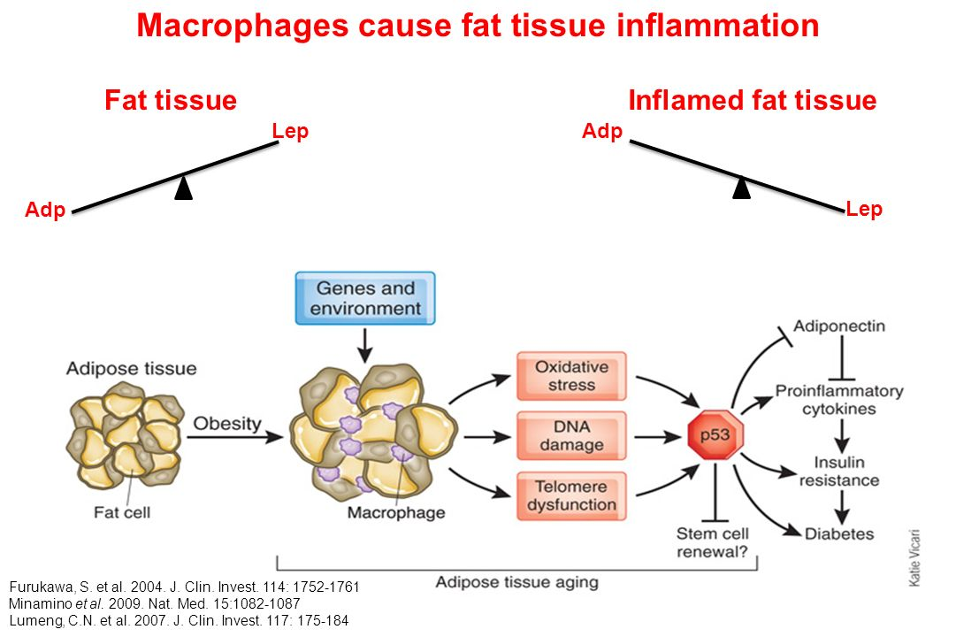 Macrophages cause fat tissue inflammation