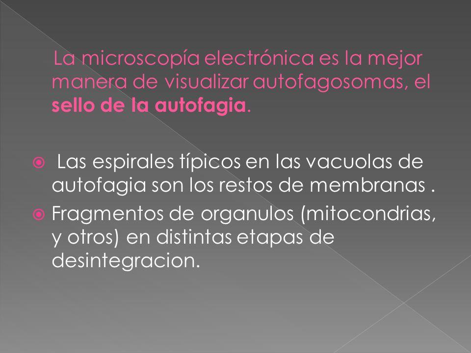 La microscopía electrónica es la mejor manera de visualizar autofagosomas, el sello de la autofagia.