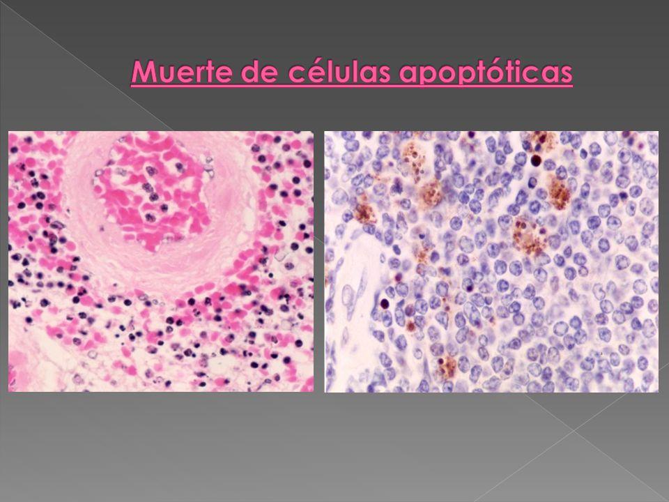 Muerte de células apoptóticas