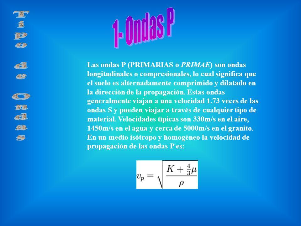 1- Ondas P