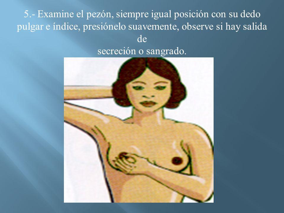5.- Examine el pezón, siempre igual posición con su dedo pulgar e índice, presiónelo suavemente, observe si hay salida de