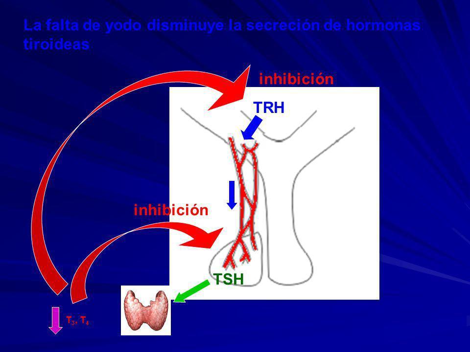 La falta de yodo disminuye la secreción de hormonas tiroideas