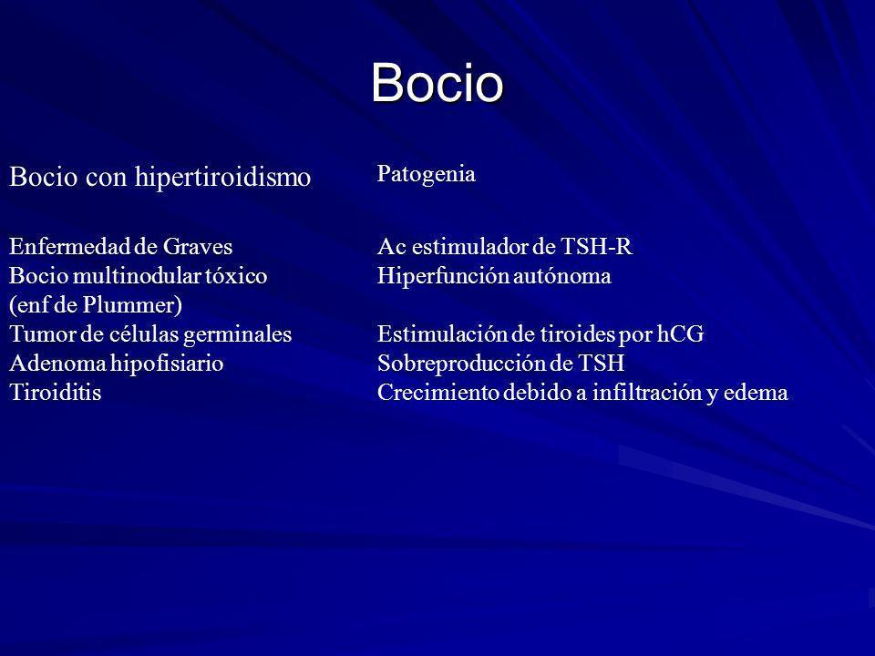 Bocio Bocio con hipertiroidismo Patogenia Enfermedad de Graves