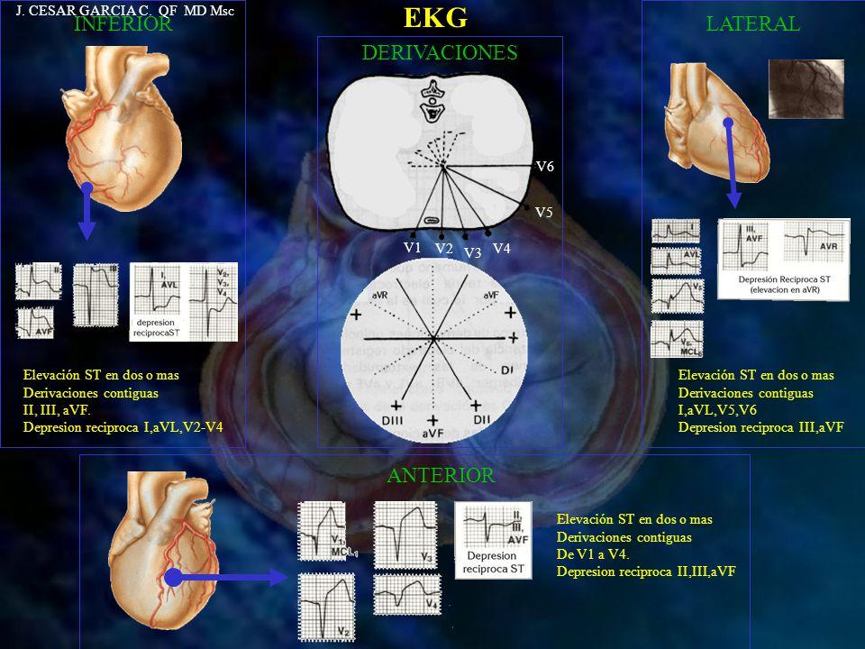 EKG INFERIOR LATERAL DERIVACIONES ANTERIOR