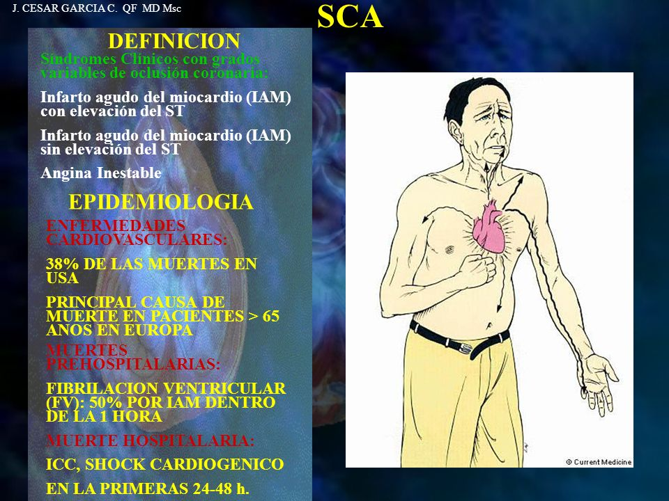 SCA DEFINICION EPIDEMIOLOGIA