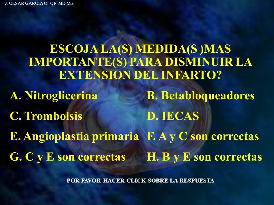 A. Nitroglicerina B. Betabloqueadores C. Trombolsis D. IECAS